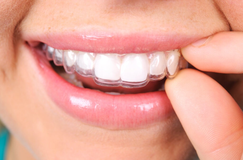 Six Month Smiles® aligner