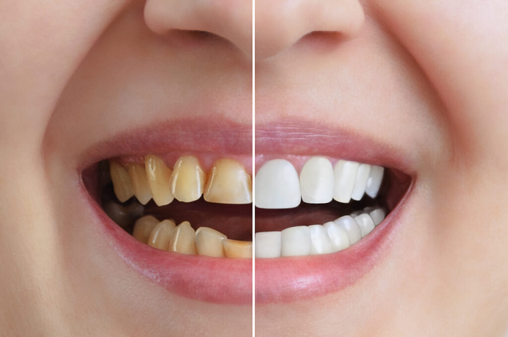Cosmetic dentistry treatment and whitening of teeth, dental crowns. Before and after. Dental close-up.