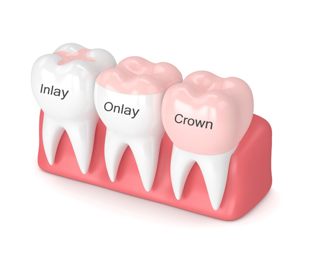 3D rendering of dental crown, inlay, and onlay fillings