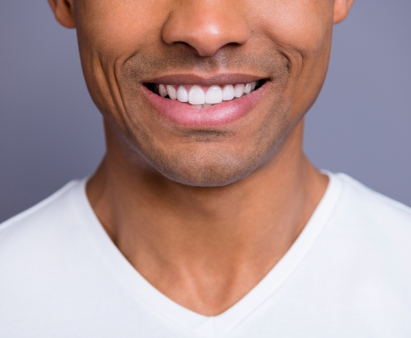 man smiling with dental veneers