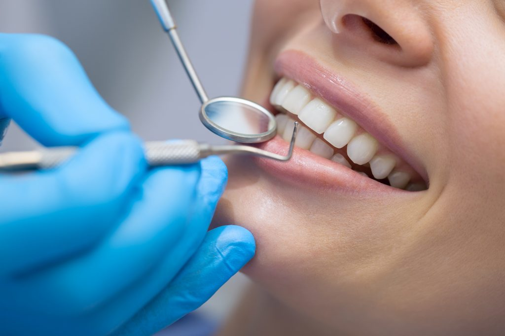 Close up of a woman's teeth with dental tools.